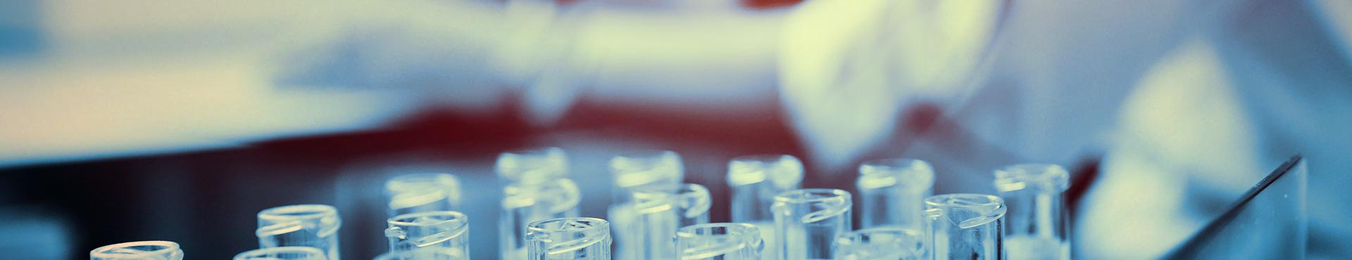 Digitalisierung von Prozessen in medizinischen Laboren
